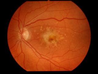 Болезнь глаза падение зрения