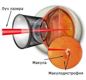 От зрения от дальнозоркости рецепт